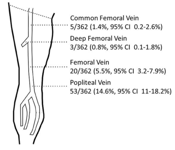 cephalic vein thrombosis information – applecool, Cephalic vein